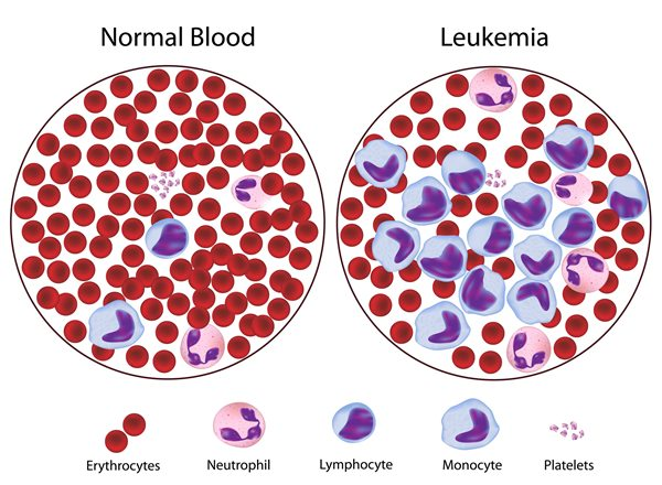 انواع سرطان خون