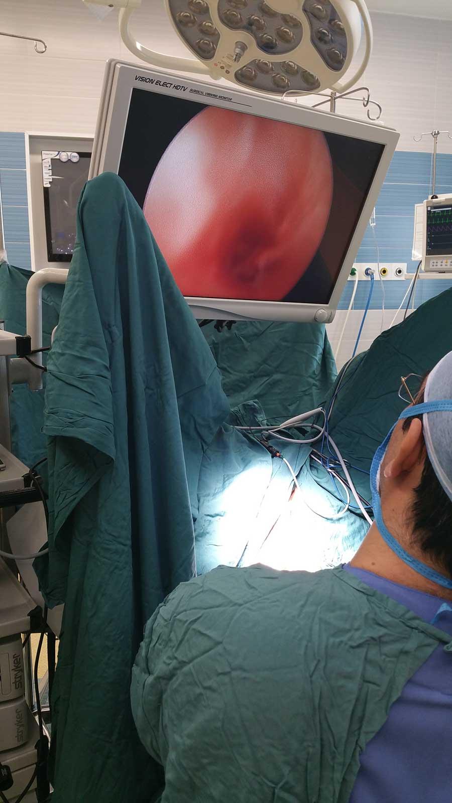 جراحی فیستول آنال