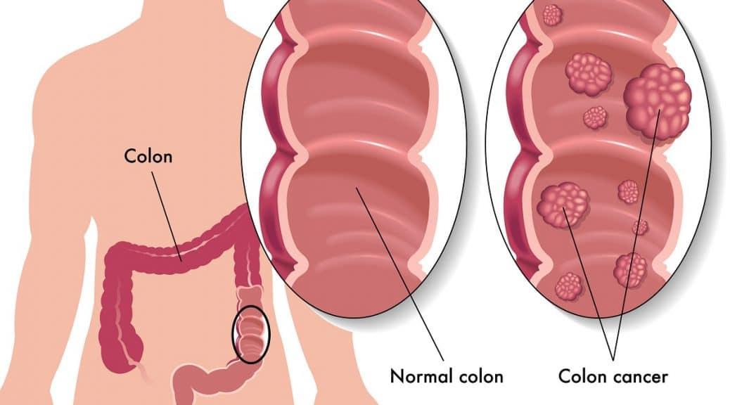 راه های تشخیص سرطان های کولون و رکتوم