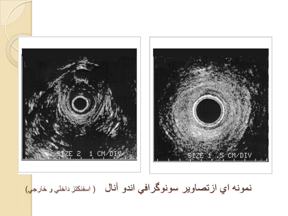سونوگرافی آندو آنال و آندو رکتال