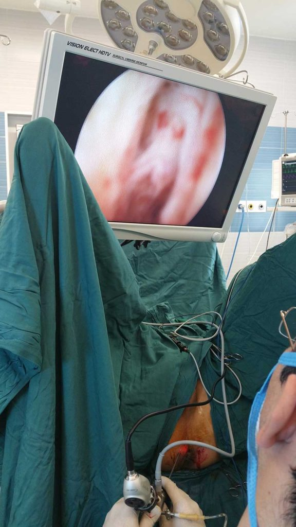 عمل جراحی فیستول آنال
