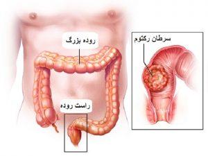 سرطان رکتوم یا راست روده