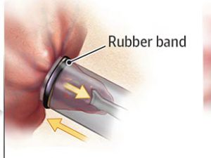 Treatment of hemorrhoids with rubber band